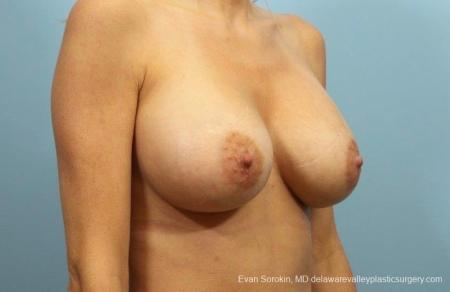 Philadelphia Breast Augmentation 8782 -  After Image 2