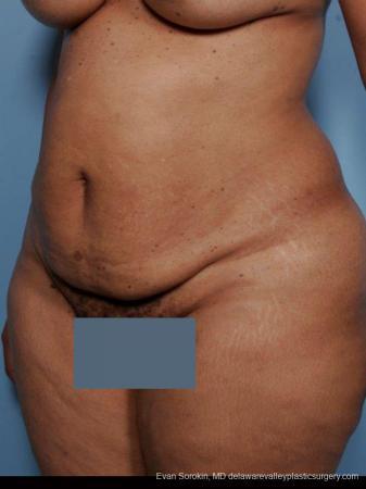 Philadelphia Abdominoplasty 9461 - Before Image 4