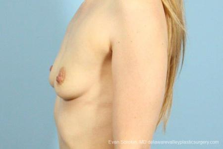 Philadelphia Breast Augmentation 8659 - Before and After Image 5