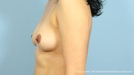 Philadelphia Breast Augmentation 9287 - Before and After Image 5