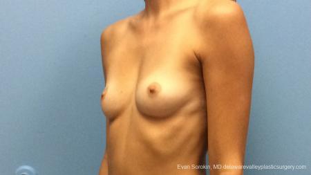 Philadelphia Breast Augmentation 13180 - Before Image 4