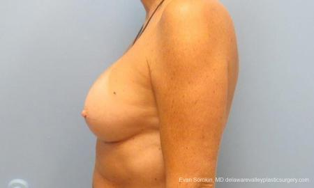 Philadelphia Breast Augmentation 9600 -  After Image 5