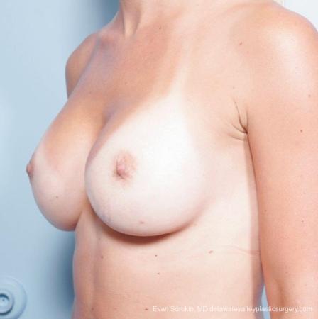 Philadelphia Breast Augmentation 8652 -  After Image 3