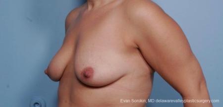 Philadelphia Breast Lift and Augmentation 8702 - Before Image 3