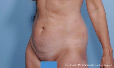 Philadelphia Abdominoplasty 9376 - Before Image 4