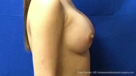 Philadelphia Breast Augmentation 13172 -  After Image 3