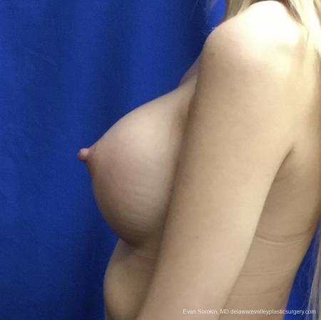 Breast Augmentation: Patient 166 - After Image 5