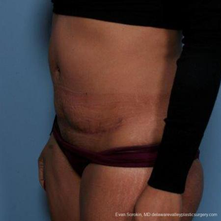 Philadelphia Abdominoplasty 9479 -  After Image 4