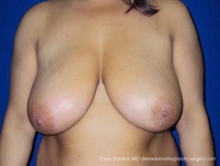 Philadelphia Breast Reduction 8701 - Before Image