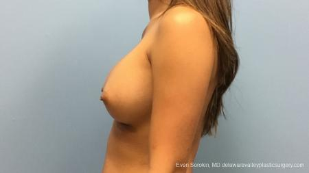 Philadelphia Breast Augmentation 13183 -  After Image 5