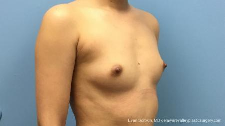 Philadelphia Breast Augmentation 13172 - Before Image 2