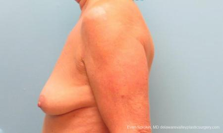 Philadelphia Breast Lift and Augmentation 9598 - Before and After Image 5