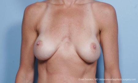Philadelphia Breast Augmentation 9454 - Before Image 1