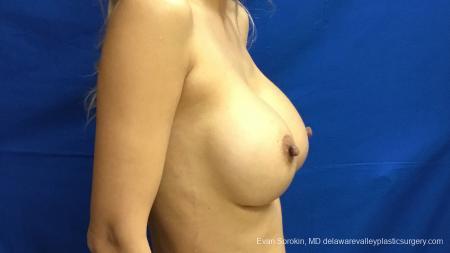 Philadelphia Breast Augmentation 13178 -  After Image 3