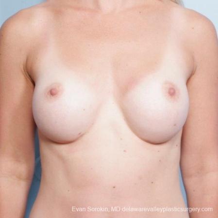 Philadelphia Breast Augmentation 8652 - Before Image 1