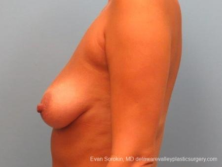 Philadelphia Breast Lift and Augmentation 10247 - Before Image 3