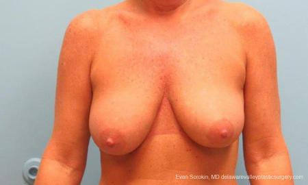 Philadelphia Breast Lift and Augmentation 9398 - Before Image