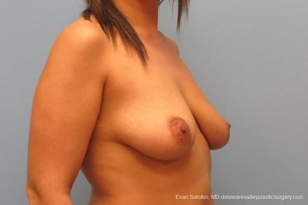 Philadelphia Breast Lift and Augmentation 8688 - Before Image 2
