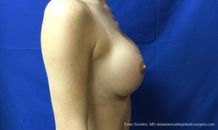 Philadelphia Breast Augmentation 10816 -  After Image 3