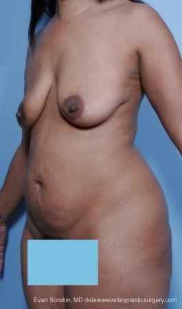 Philadelphia Mommy Makeover 8691 - Before Image 3