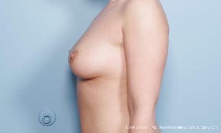 Philadelphia Breast Augmentation 9172 - Before and After Image 5