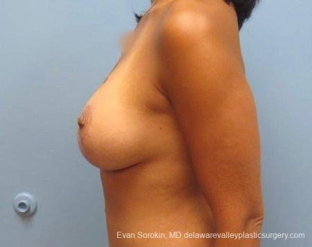 Philadelphia Breast Lift and Augmentation 8824 -  After 4