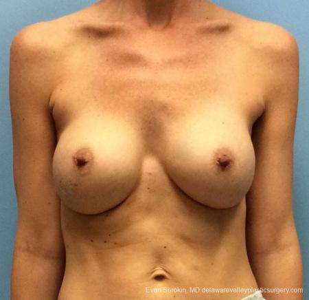 Philadelphia Breast Augmentation 13069 - Before Image 1