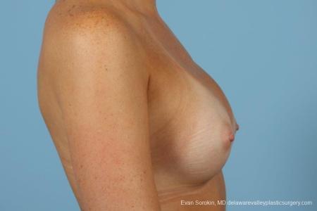 Philadelphia Breast Augmentation 8669 -  After Image 4