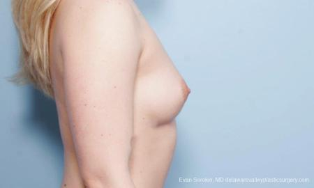 Breast Augmentation: Patient 129 - Before Image 3
