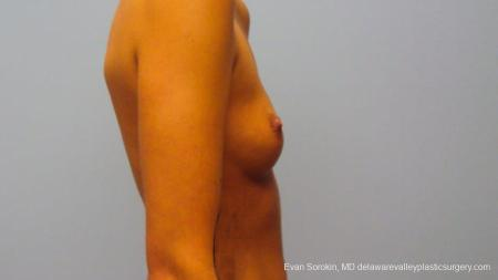 Philadelphia Breast Augmentation 9292 - Before and After Image 5