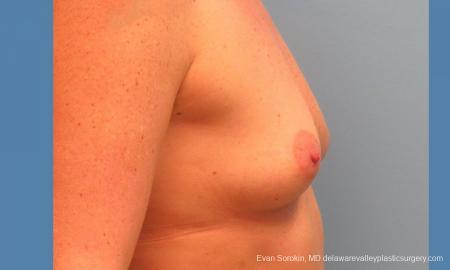 Philadelphia Breast Augmentation 9487 - Before Image 3