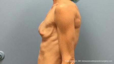 Philadelphia Breast Augmentation 13182 - Before Image 2