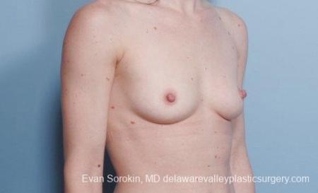 Philadelphia Breast Augmentation 9107 - Before Image 2