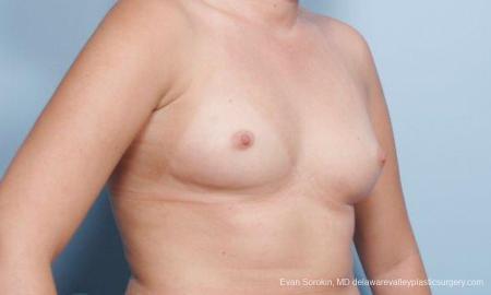 Philadelphia Breast Augmentation 9301 - Before Image 2