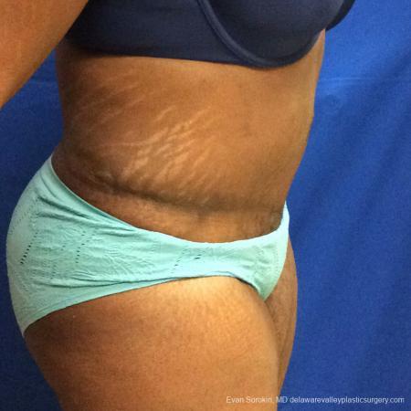 Philadelphia Abdominoplasty 10817 -  After Image 3
