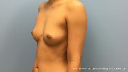 Philadelphia Breast Augmentation 13183 - Before Image 4