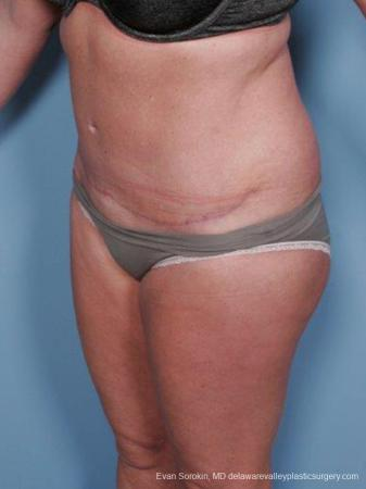Philadelphia Abdominoplasty 9463 -  After Image 4