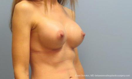 Philadelphia Breast Augmentation 9368 -  After Image 2