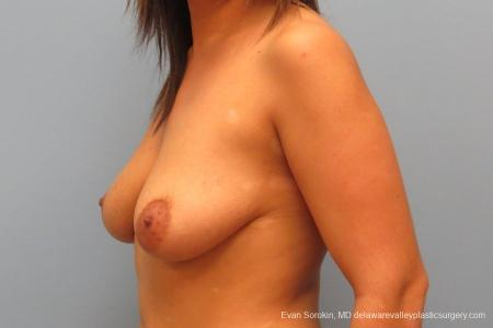 Philadelphia Breast Lift and Augmentation 8688 - Before Image 3