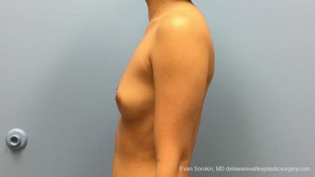 Philadelphia Breast Augmentation 13183 - Before and After Image 5