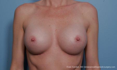 Philadelphia Breast Augmentation 9359 -  After Image 1