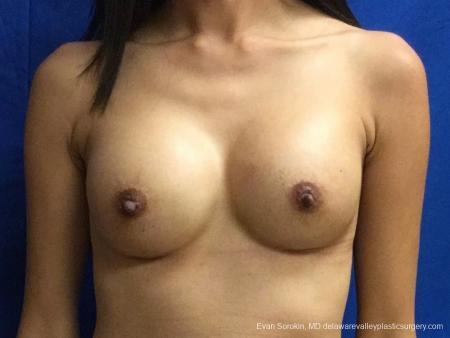 Philadelphia Breast Augmentation 13071 -  After Image 1