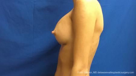 Philadelphia Breast Augmentation 13176 -  After Image 5