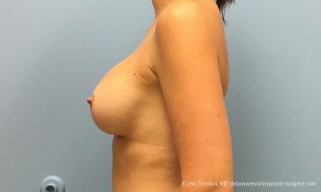 Philadelphia Breast Augmentation 12514 -  After Image 5