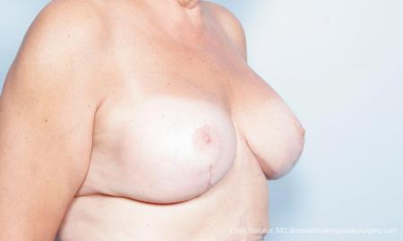 Philadelphia Breast Lift and Augmentation 9431 -  After Image 3