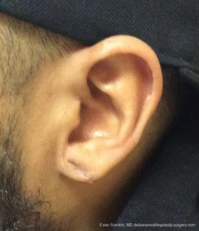 Philadelphia Earlobe Surgery 13181 - After Image