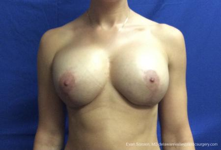 Breast Lift And Augmentation: Patient 42 - After Image 1