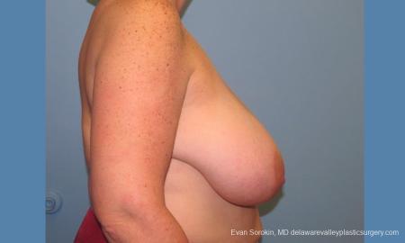 Philadelphia Breast Reduction 10118 - Before Image 3