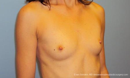 Philadelphia Breast Augmentation 9417 - Before Image 2