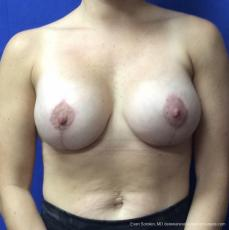 Breast Lift And Augmentation: Patient 3 - After Image